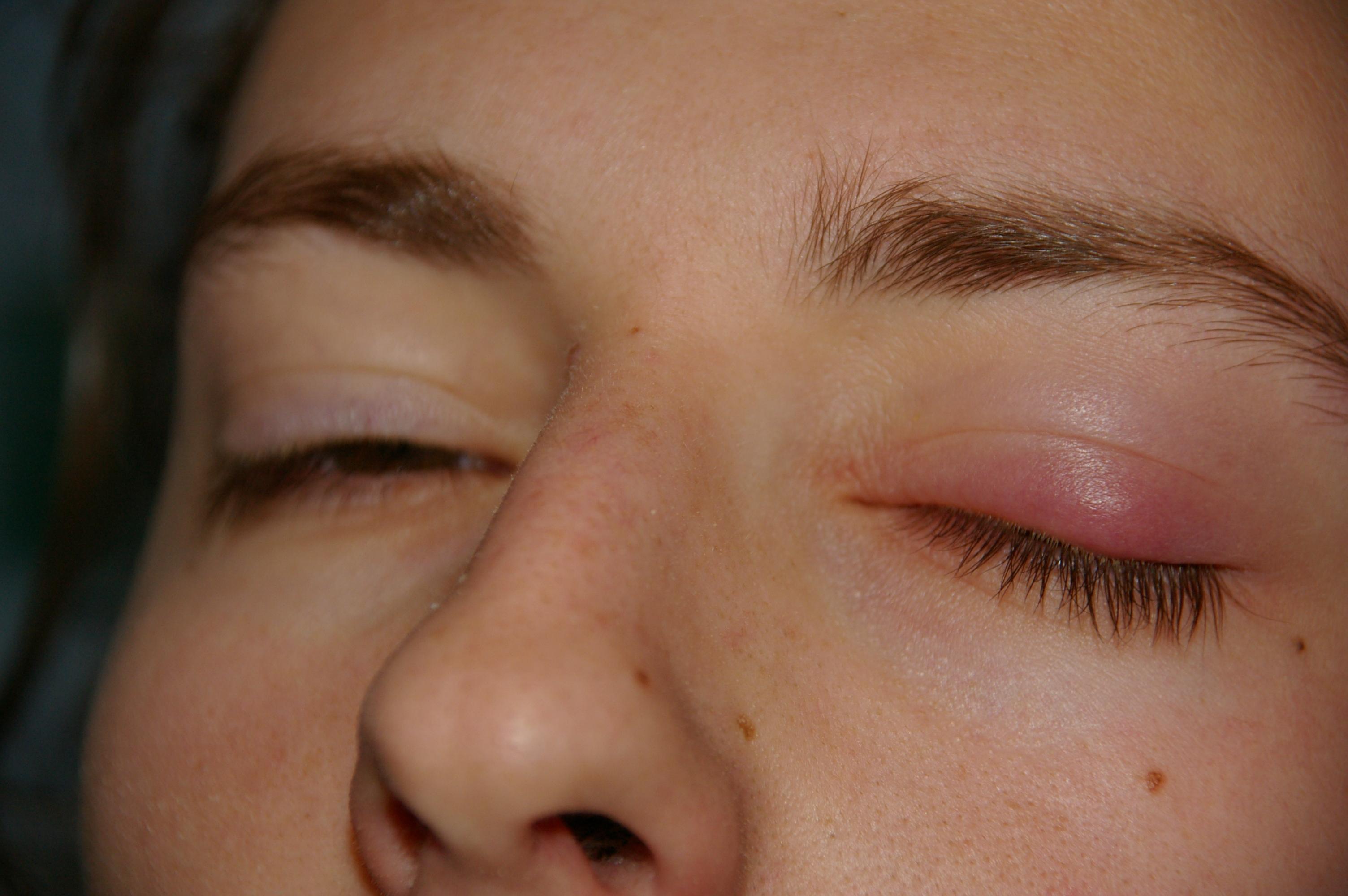 El hinchazón del ojo a la dipsomanía