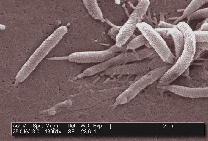 helicobacter pylori. Black Bedroom Furniture Sets. Home Design Ideas