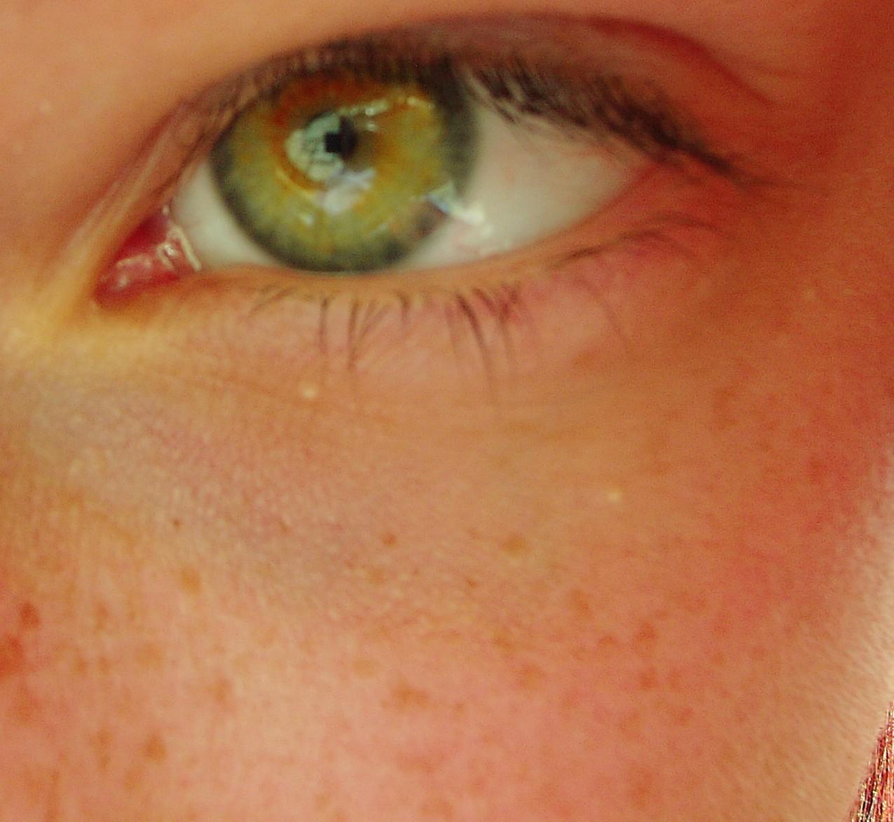 Les taches de pigment sur la personne de la raison de lapparition et le traitement