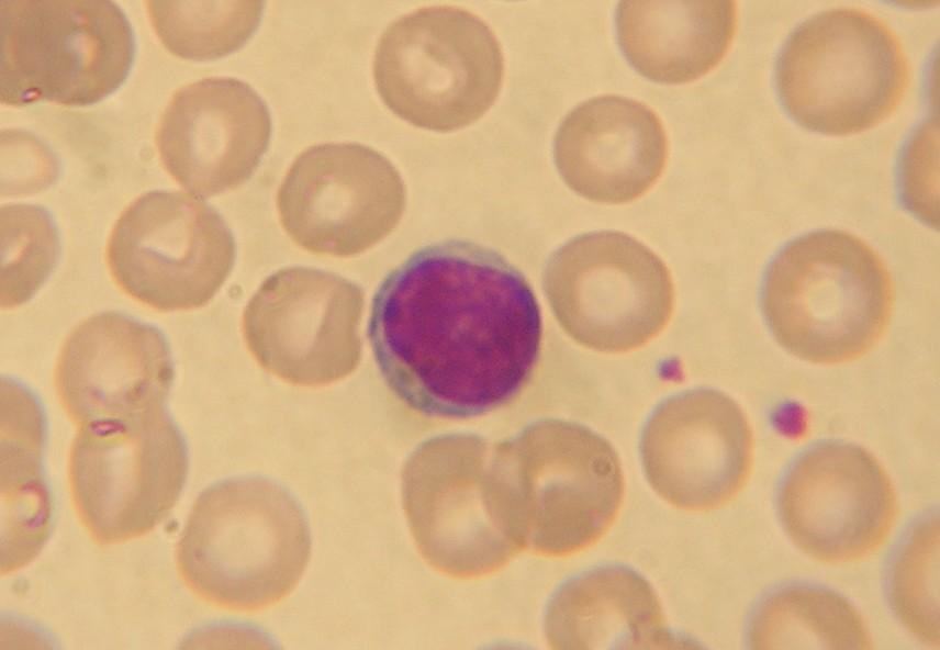 how to draw a lymphocyte