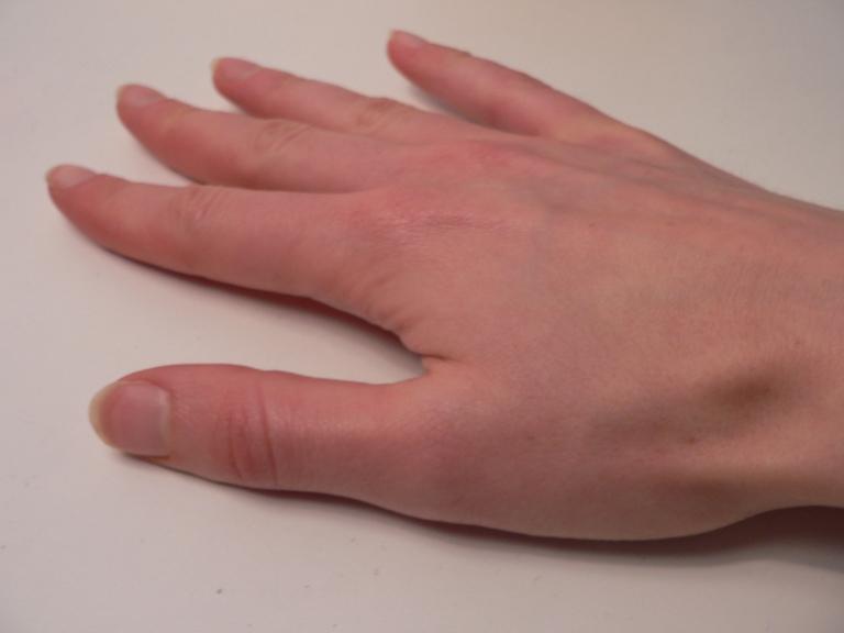 enalapril vasotec recall