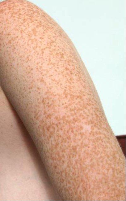 Les taches dâge de pigment sur la personne chez les hommes